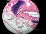 bronkusintrapulmonaris2