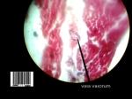 vasa vasorum 1